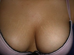 dermarolling-stretchmarks-before-after1-584x438