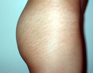 Remove_Stretch_Marks_on_Hips-300x236
